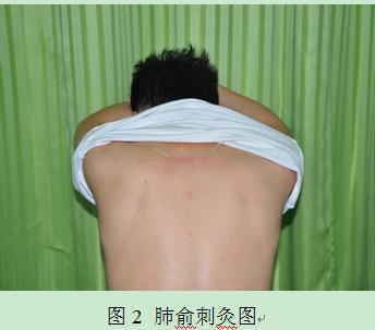肺俞刺灸图